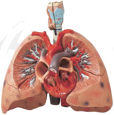human lung models, Cephalic Vein